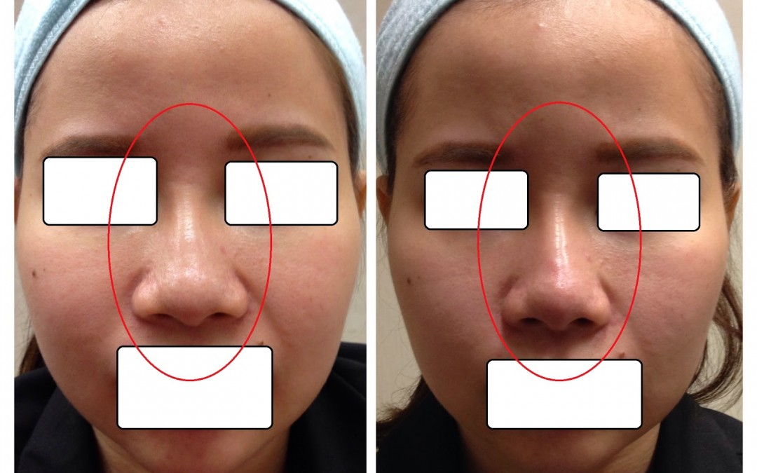 Nose Tip Refinement Filler Procedure