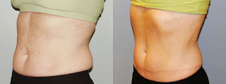 Zeltic CoolSculpting Cryolipolysis Results for Tummy