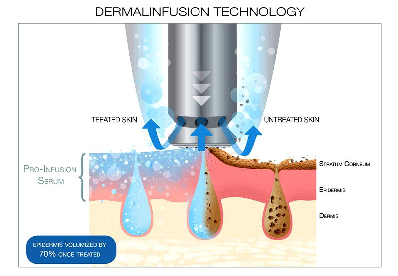 Diagram-of-dermalinfusion-technology-used-on-skin-1-e1511849869583