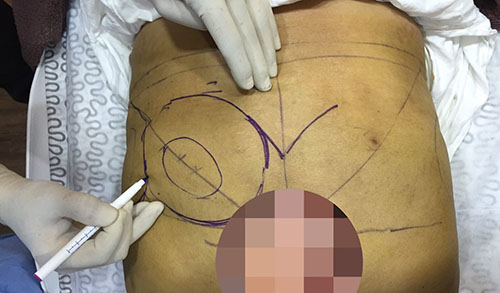 Buttocks Enhancement with Dermal Filler Injection in Kuala Lumpur