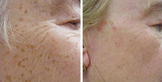 Faded Age Spots after Using Obagi Nu Derm