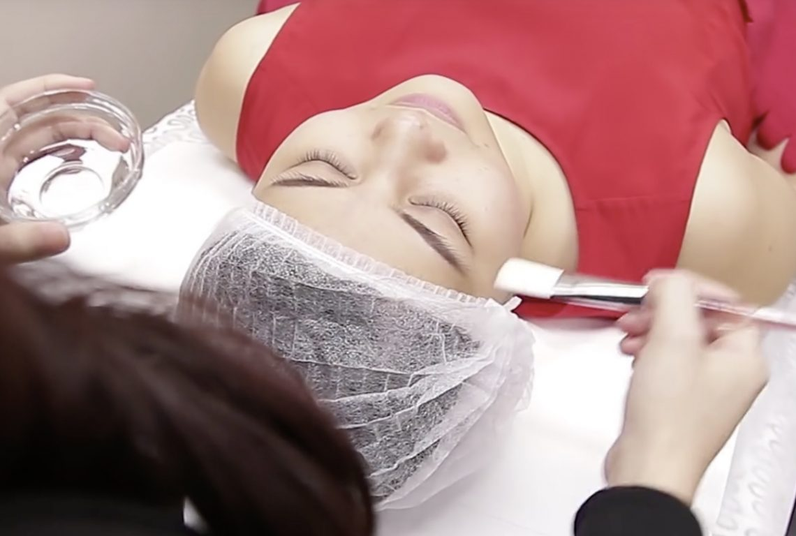 Skin-Peel-for-Acne-02-1140x768-2