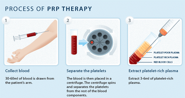 prp-therapy-2