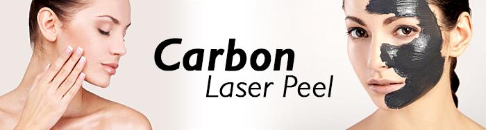 Carbon-Laser-Peel