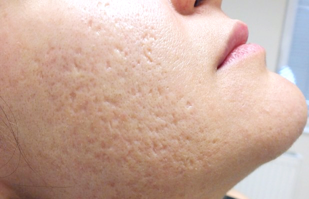 How To Close Large Pores On Face Naturally