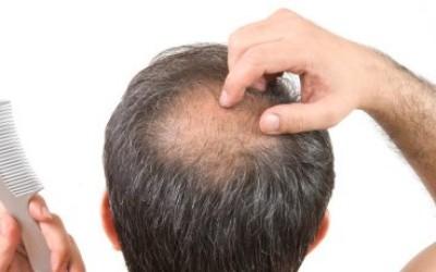Premier Stem Cell Hair Loss Package