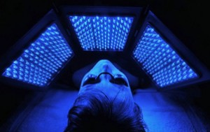 Light therapy. A variety of light-based therapies have been tried with success. But further study is needed to determine the ideal method, light source and dose. Light therapy targets the bacteria that cause acne inflammation. Some types of light therapy are done in a doctor's office. Blue-light therapy can be done at home with a hand-held device.Possible side effects of light therapy include pain, temporary redness and sensitivity to sunlight.