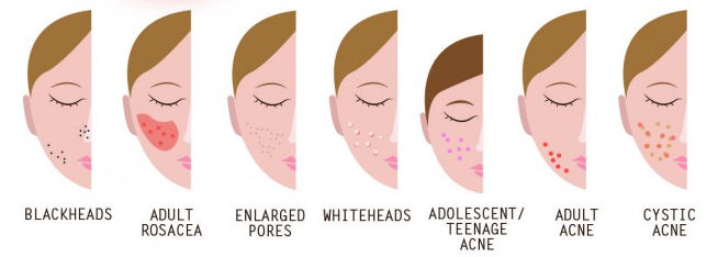 symptoms-of-acne