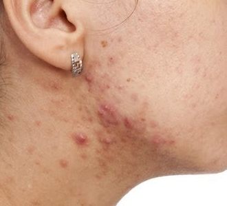 neck-acne