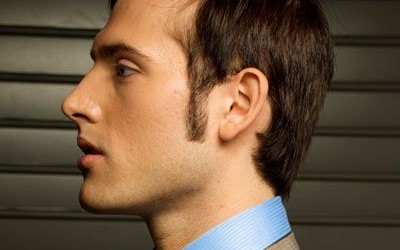 Sideburn Hair Transplant HD Video