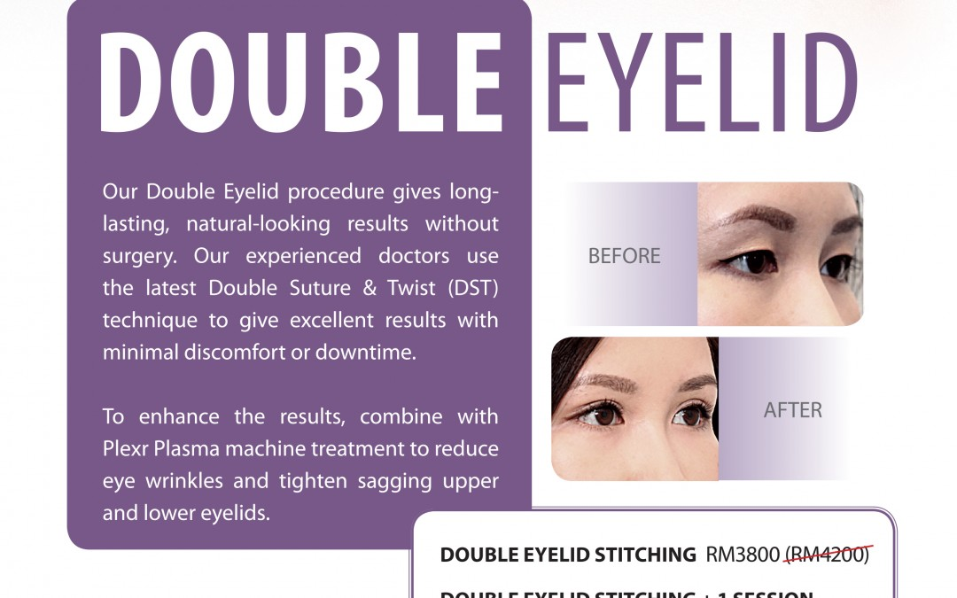 Double Eyelid Surgery using Double Suture Twist- KL Aesthetic
