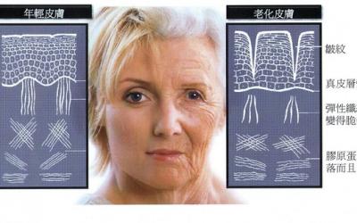 探讨皱纹的治疗法   Aging skin – Wrinkles