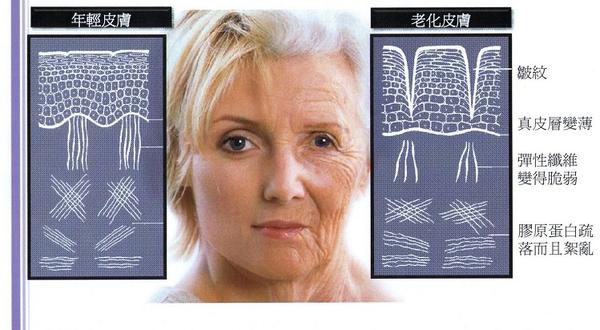 Aging skin – Wrinkles