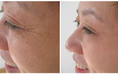 Tired of seeing wrinkles on your face as you age?