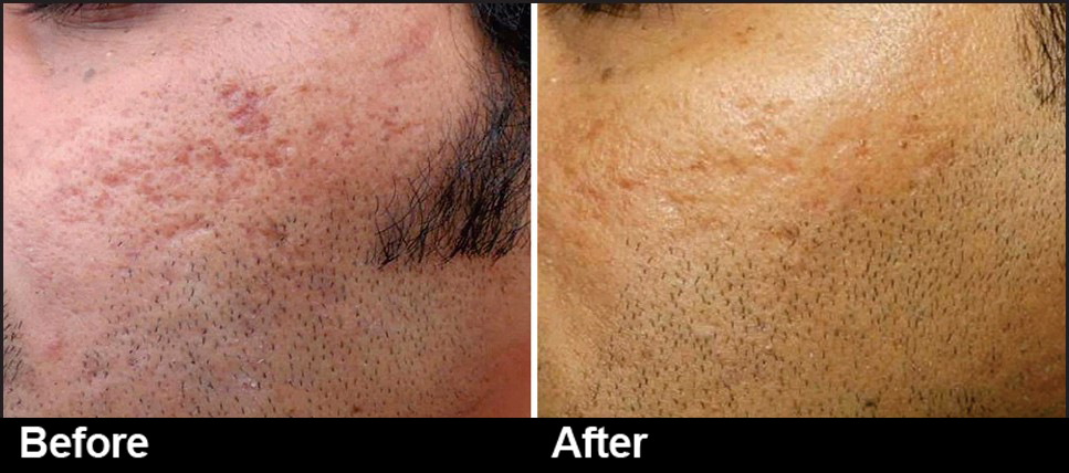 Have a problem with Acne Scars?
