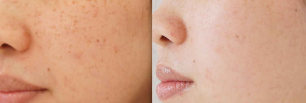 before-and-after-laser-pigment-removal-asian-skin