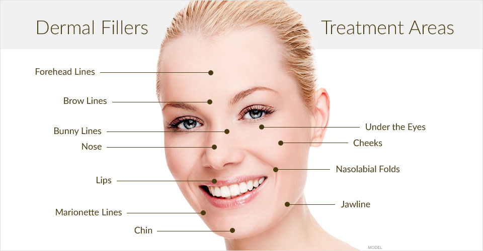 dermal-filler-treatment-areas