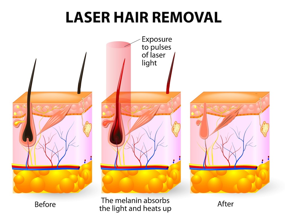 Laser-hair-removal-5