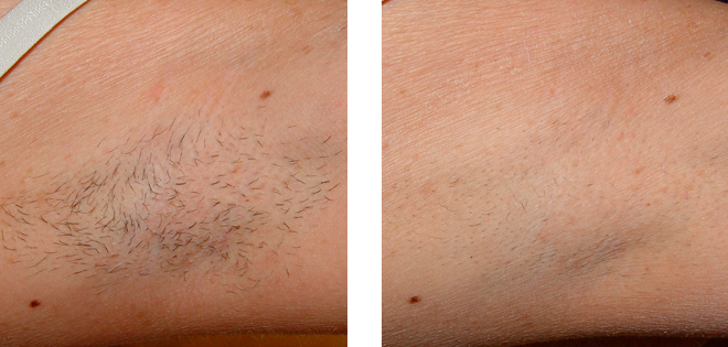 Armpit Hair Removal Before & After