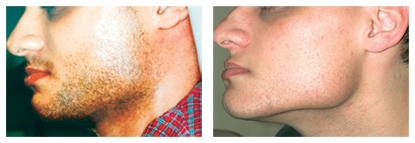 Facial Hair Removal Before and After