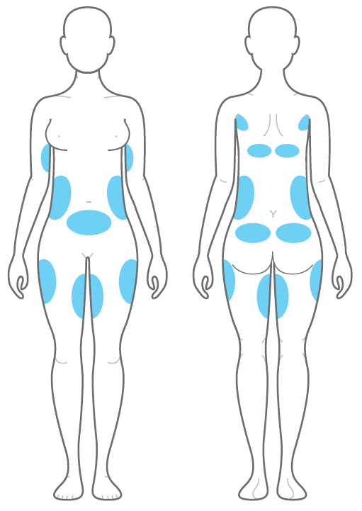 Areas-able-to-be-targeted-by-Clatuu-coolsculpting-cryolipolysis