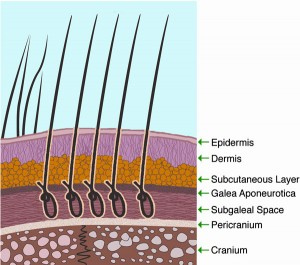 Biofibre Hair Implant Procedure