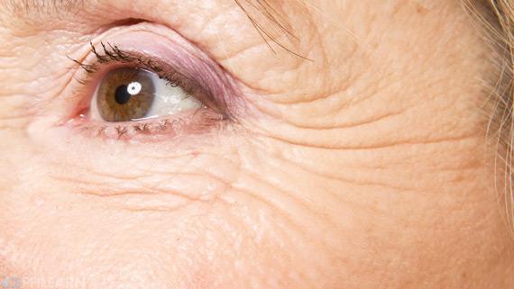 wrinkles-original