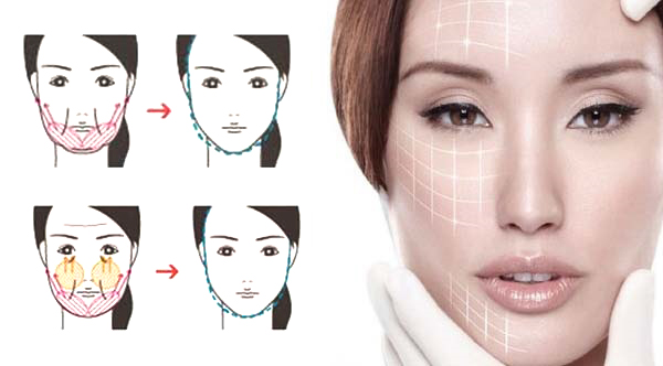 Square jaw lower face reshaping