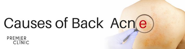 Causes of Back Acne