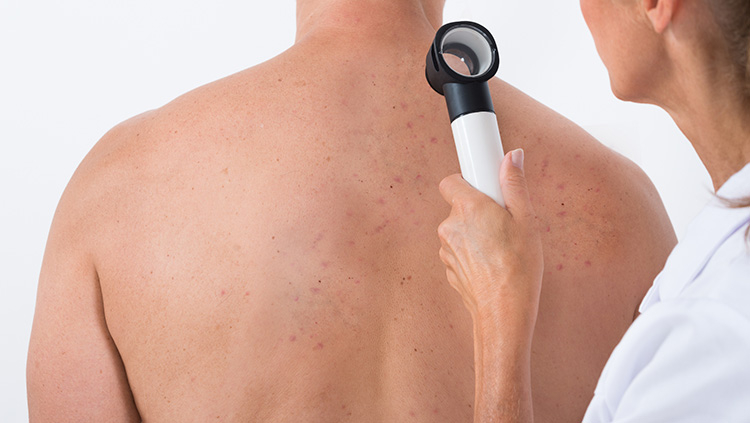 Back Acne: Causes, Self-Care and Treatment