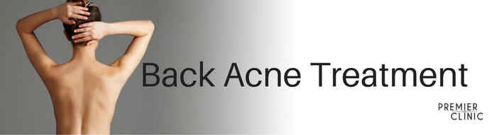 Treatment for Back Acne