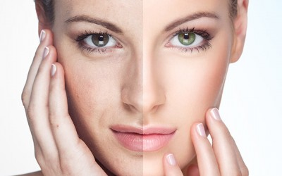 Enhance Your Appearance with Fractional CO2 Laser