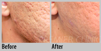 Fractional CO2 Laser, Premier Clinic