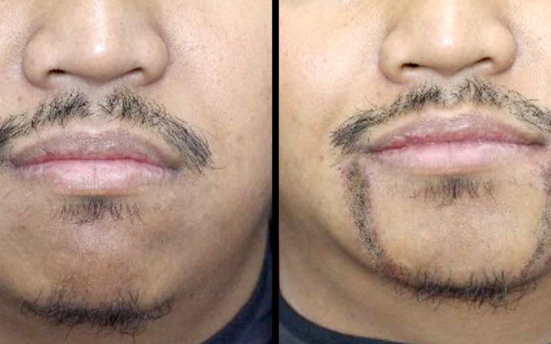 FUE Hair Transplant for Facial Hair