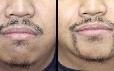 FUE Hair Transplant for Facial Hair