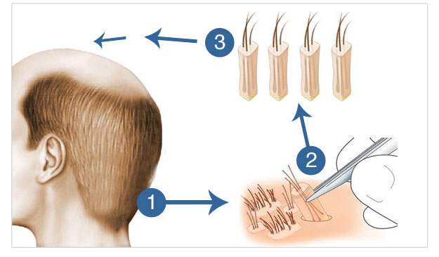 hair_transplant_follicular_unit_extraction-_fue_technique_1
