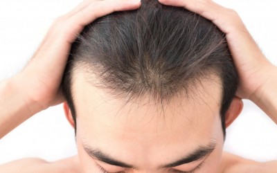 When Should You Start Worrying About Hair Loss?