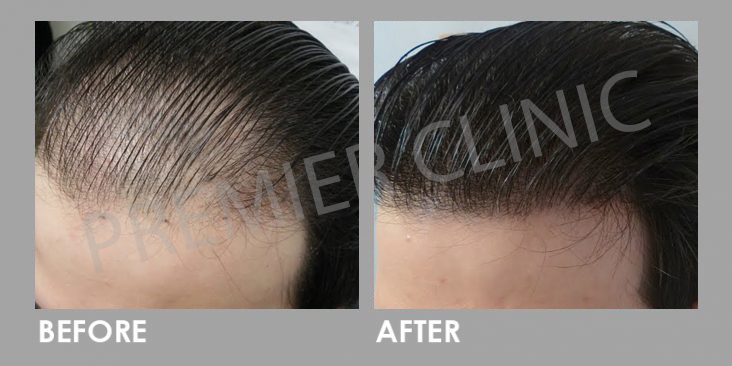 FUE Hair Transplant Before After