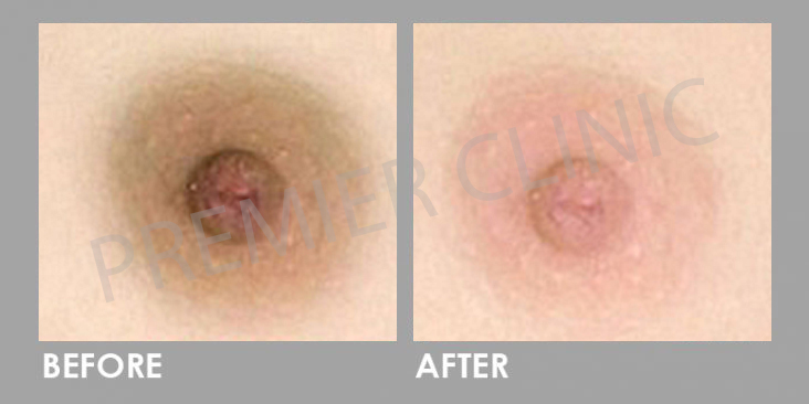 Nipple Whitening Before After