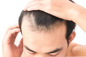 How to Cope with Hair Loss for Men?