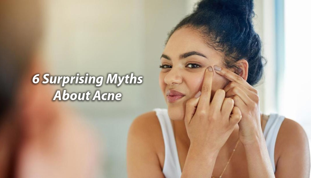 6 Surprising Myths About Acne