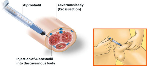 Caverject Injection for Erectile Dysfunction