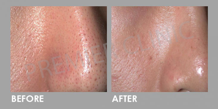Carbon Laser Peel Before After 01