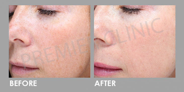Carbon Laser Peel before and after 02