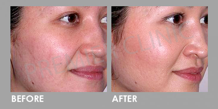 Carbon Laser Peel before and after 03