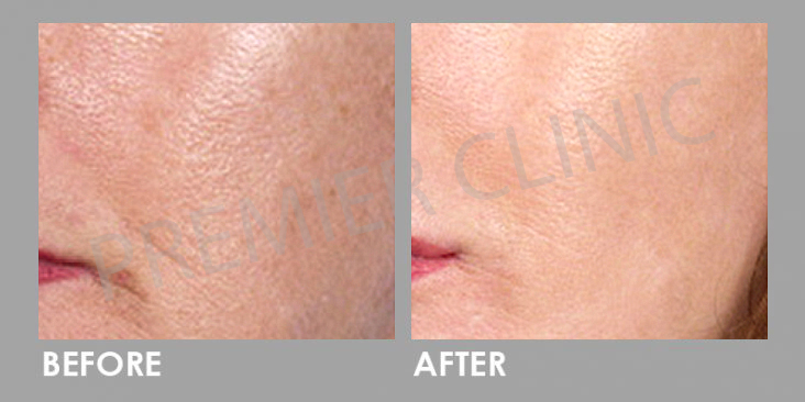 Carbon Laser Peel before and after 06