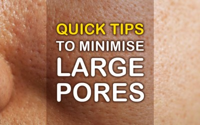 Quick Tips to Reduce Appearance of Large Pores