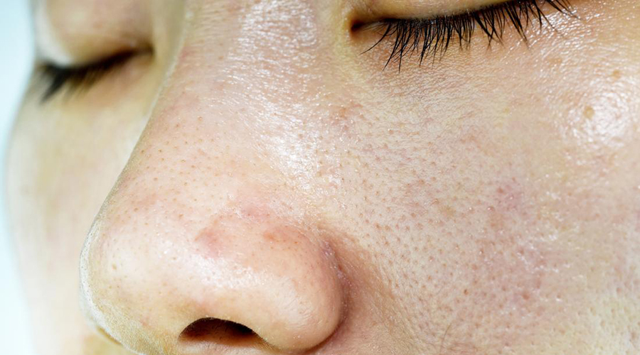 Common Causes of Enlarged Pores