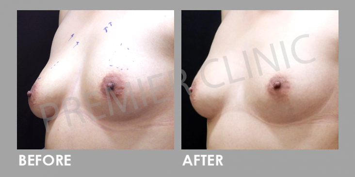 Breast Botox Before