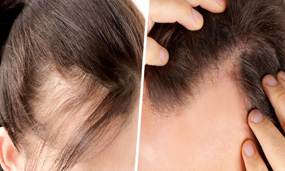 Premier Signature Hair Growth Laser